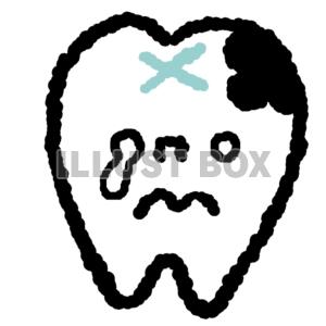 虫歯シリーズ☆治療が必要な歯